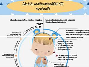 Infographic: Dấu hiệu trẻ bị bệnh sởi và cách điều trị