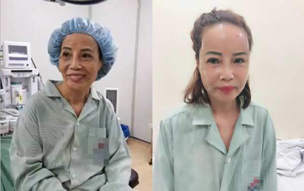 "bom mo vao mat nhu ""co dau cao bang 62 tuoi"": co thuc su cai lao hoan dong? - 3"