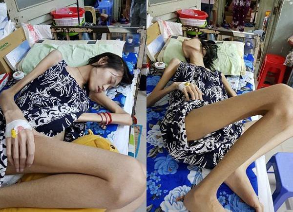 Người mẫu Kim Anh qua đời vì ung thư buồng trứng, phụ nữ có đặc điểm này dễ mắc bệnh