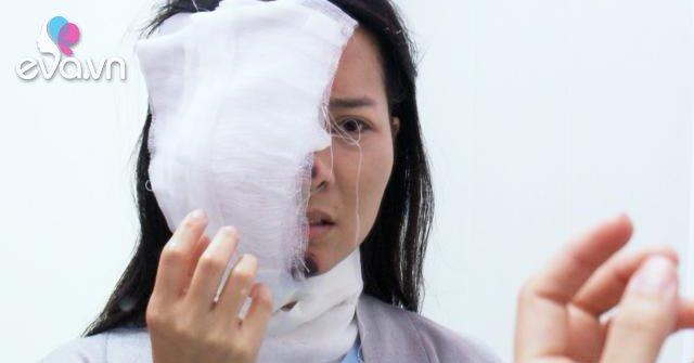 Cảnh Khánh Hiền bị tình địch đánh ghen tạt axit gây ám ảnh khôn cùng cho khán giả