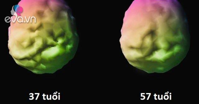 Nhà thần kinh học đã trẻ hóa não bộ của chính mình và đây là cách làm điều đó
