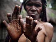 Ngôi làng kỳ lạ cấm phụ nữ sinh con, chuyển dạ đau đớn vẫn phải đi nơi khác đẻ