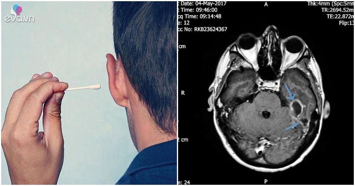Bị nhiễm trùng não 5 năm mà không biết vì vệ sinh tai theo cách nhiều người làm