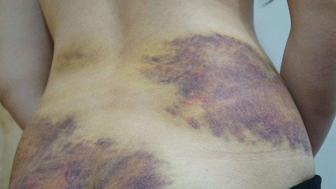 Vụ nghi bạo hành, ép vợ quan hệ tình dục: Lời kể sốc của nạn nhân