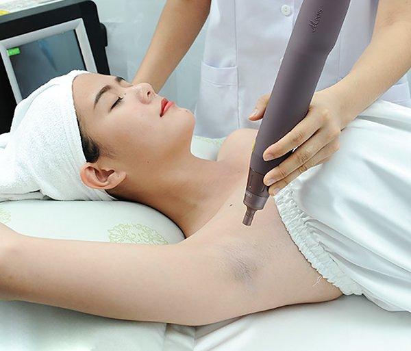 Trị thâm bằng laser có phải phương án tối ưu để cải thiện vùng da tối màu dưới cánh tay?