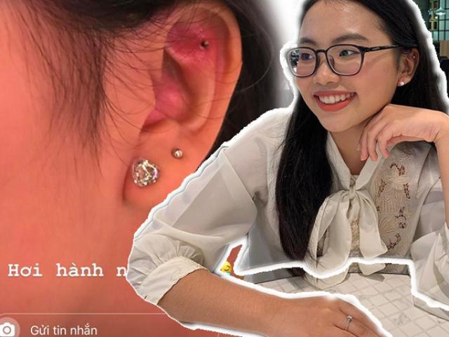 Phương Mỹ Chi bị viêm da khi bấm lỗ tai, những điều này sẽ giúp bạn khắc phục