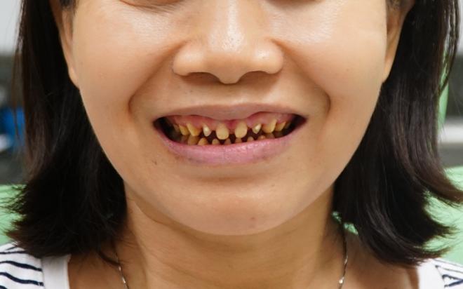 Bệnh viện JW ưu đãi khủng đến 50% toàn bộ dịch vụ răng hàm mặt - 1