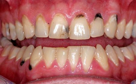 Bệnh viện JW ưu đãi khủng đến 50% toàn bộ dịch vụ răng hàm mặt - 2