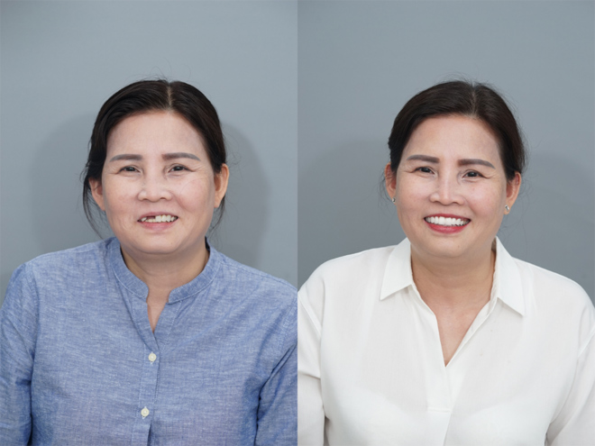 Bệnh viện JW ưu đãi khủng đến 50% toàn bộ dịch vụ răng hàm mặt - 4