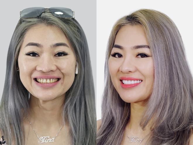 Bệnh viện JW ưu đãi khủng đến 50% toàn bộ dịch vụ răng hàm mặt - 5