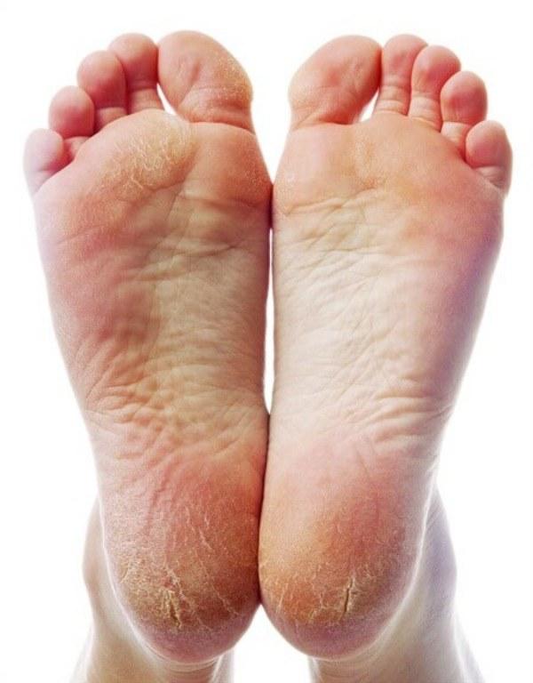 Mốt làm đẹp gót chân nở rộ: Nhìn thôi đã thấy xót mà ai cũng mê - 3