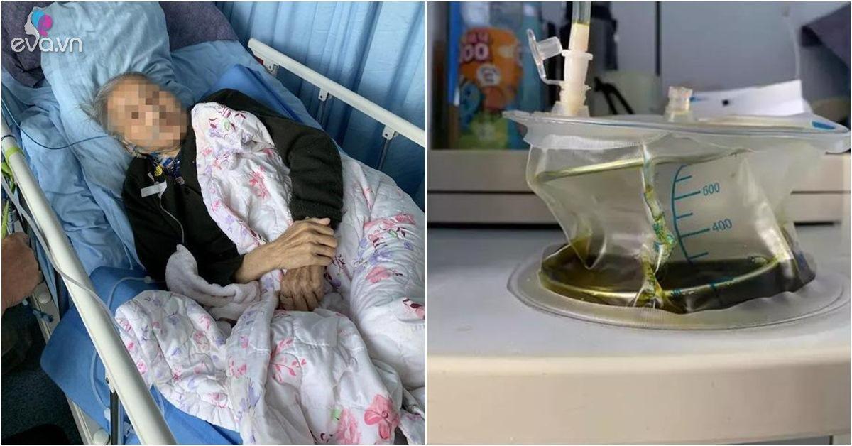 Người phụ nữ bị loạt bệnh ở mật chỉ vì duy trì thói quen này suốt 40 năm