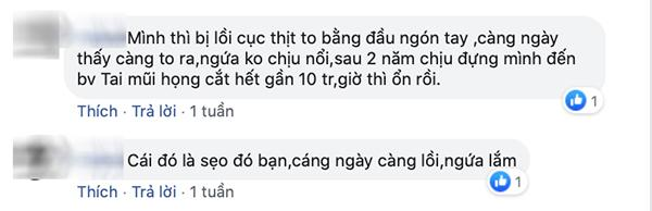 """sua mui dep xong den tai bi di dang, cong cuoc """"len doi"""" nhan sac sao ma gian nan qua! - 6"""