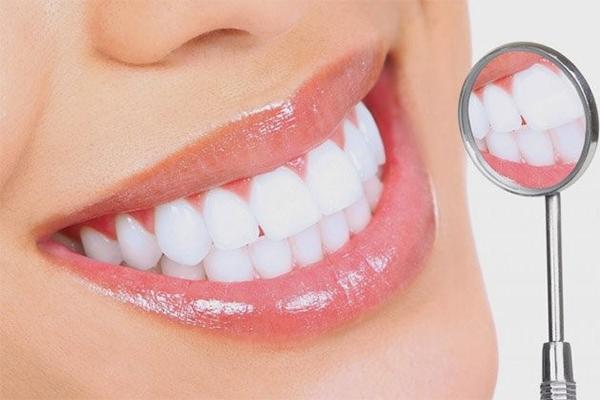 Khi nào nên bọc răng sứ để có hàm răng trắng đẹp ?