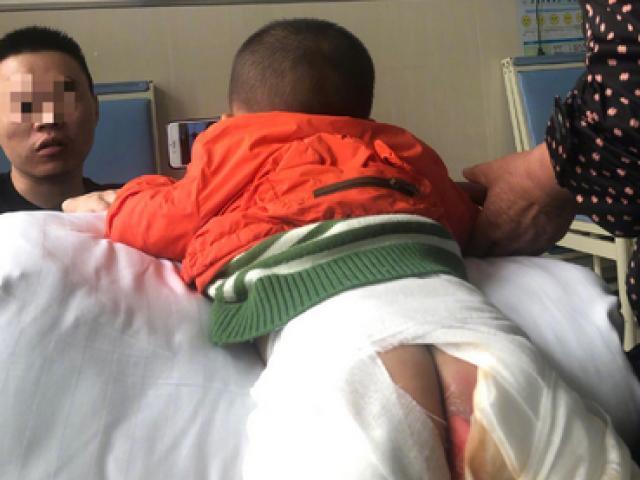 Đứa trẻ bị bỏng nặng khi ngồi cầu trượt, sự thiếu hiểu biết của người lớn làm hại trẻ