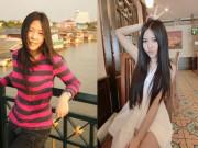 Nỗi xót xa, đau đớn của cô gái Đà Nẵng bị bạn trai tạt a xít trước ngày cưới