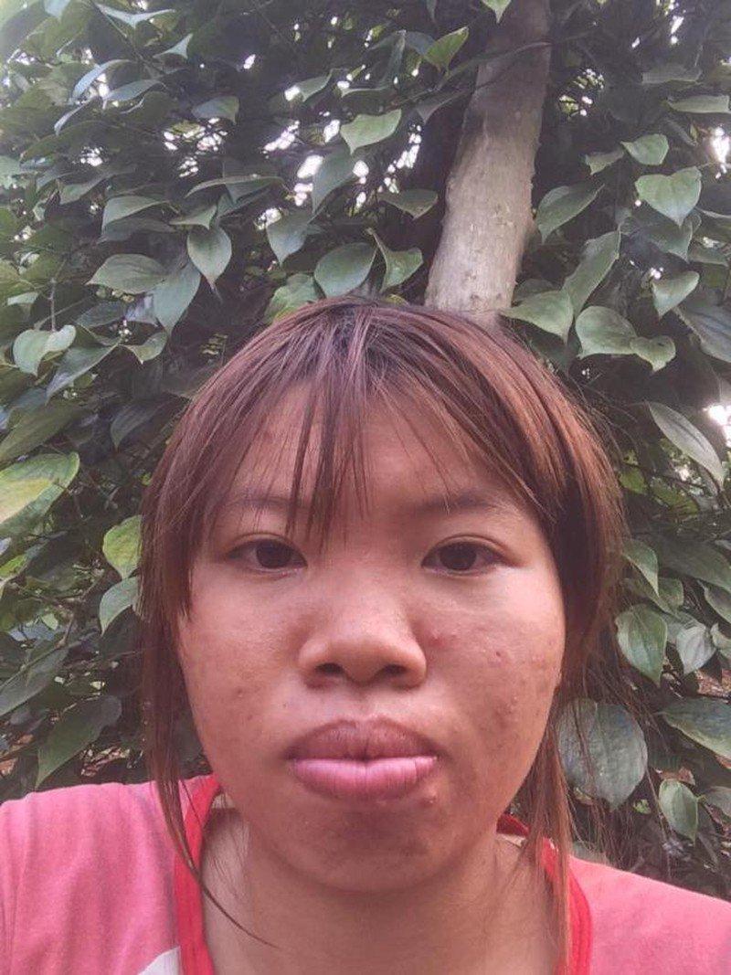 """nhung co gai """"lot xac"""" dai thanh cong sau phau thuat tham my: phuong thi no chua chac dan dau - 1"""