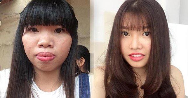 """nhung co gai """"lot xac"""" dai thanh cong sau phau thuat tham my: phuong thi no chua chac dan dau - 3"""