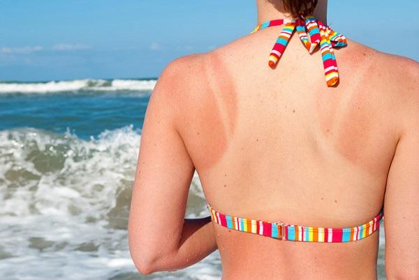 Hướng dẫn 5 cách chăm sóc da cháy nắng hiệu quả