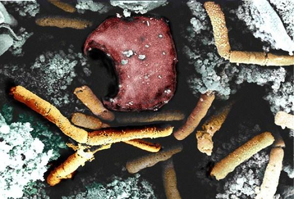 Liên tiếp ghi nhận người mắc bệnh than: Bệnh than là bệnh gì, lây truyền như thế nào? - Ảnh 2