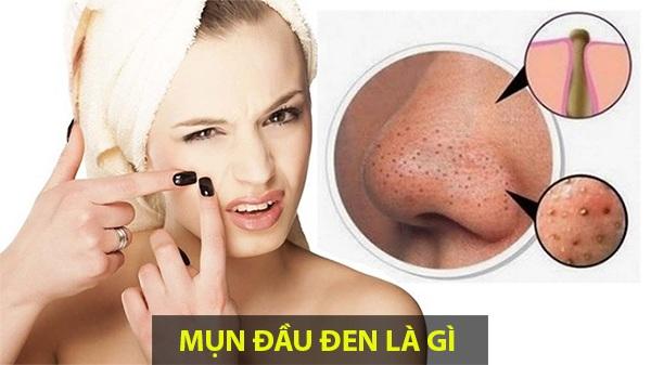 10 Cách trị mụn đầu đen ở mũi má trán an toàn hiệu quả nhanh nhất - 1