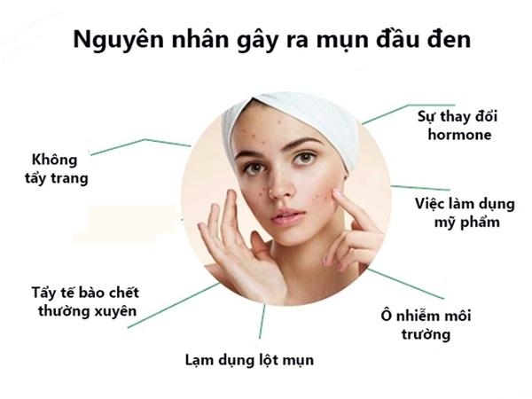 10 Cách trị mụn đầu đen ở mũi má trán an toàn hiệu quả nhanh nhất - 3