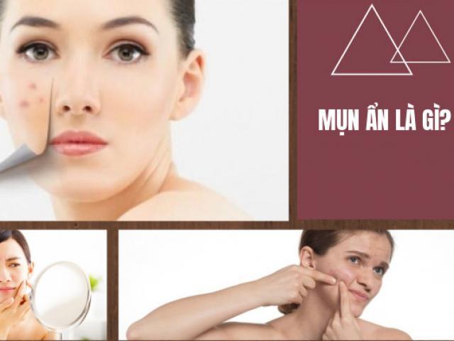 10 cách trị mụn ẩn dưới da tại nhà an toàn hiệu quả nhanh nhất