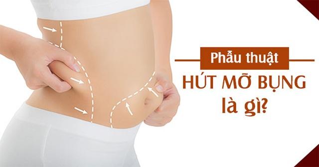 Hút mỡ bụng và những sai lầm biến chứng thường gặp dẫn đến tử vong - 1