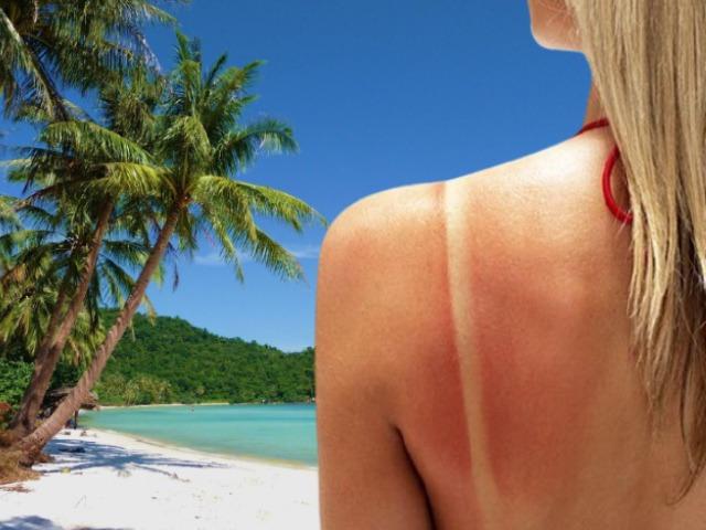 Thỏa sức vui hè với top 5 cách chăm sóc da bị cháy nắng hiệu quả ngay tại nhà