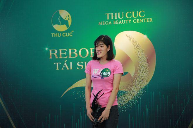 Tái sinh cuộc đời nhờ Bệnh viện Thẩm mỹ Thu Cúc - 1