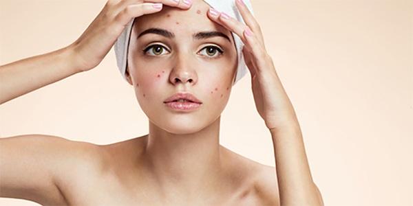 Cách chăm sóc da mụn và thâm hàng ngày đúng cách tại nhà an toàn nhất - 9