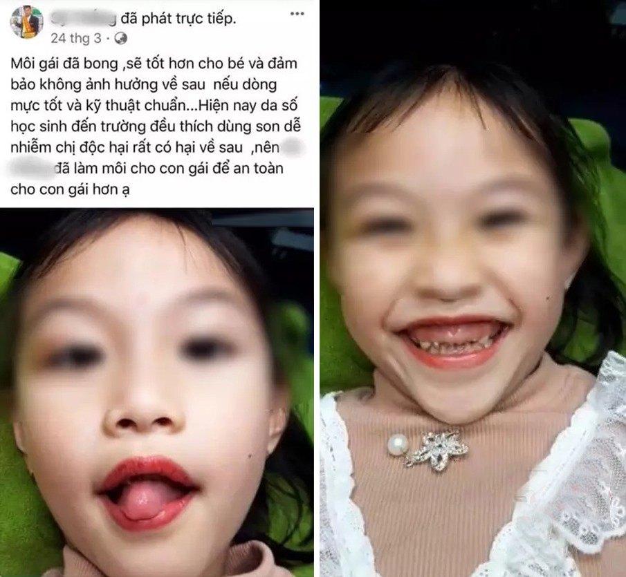 Chủ tiệm thẩm mỹ lấy con gái 5 tuổi ra phun môi làm mẫu quảng cáo nhận amp;#34;rổ gạch đáamp;#34; - 4