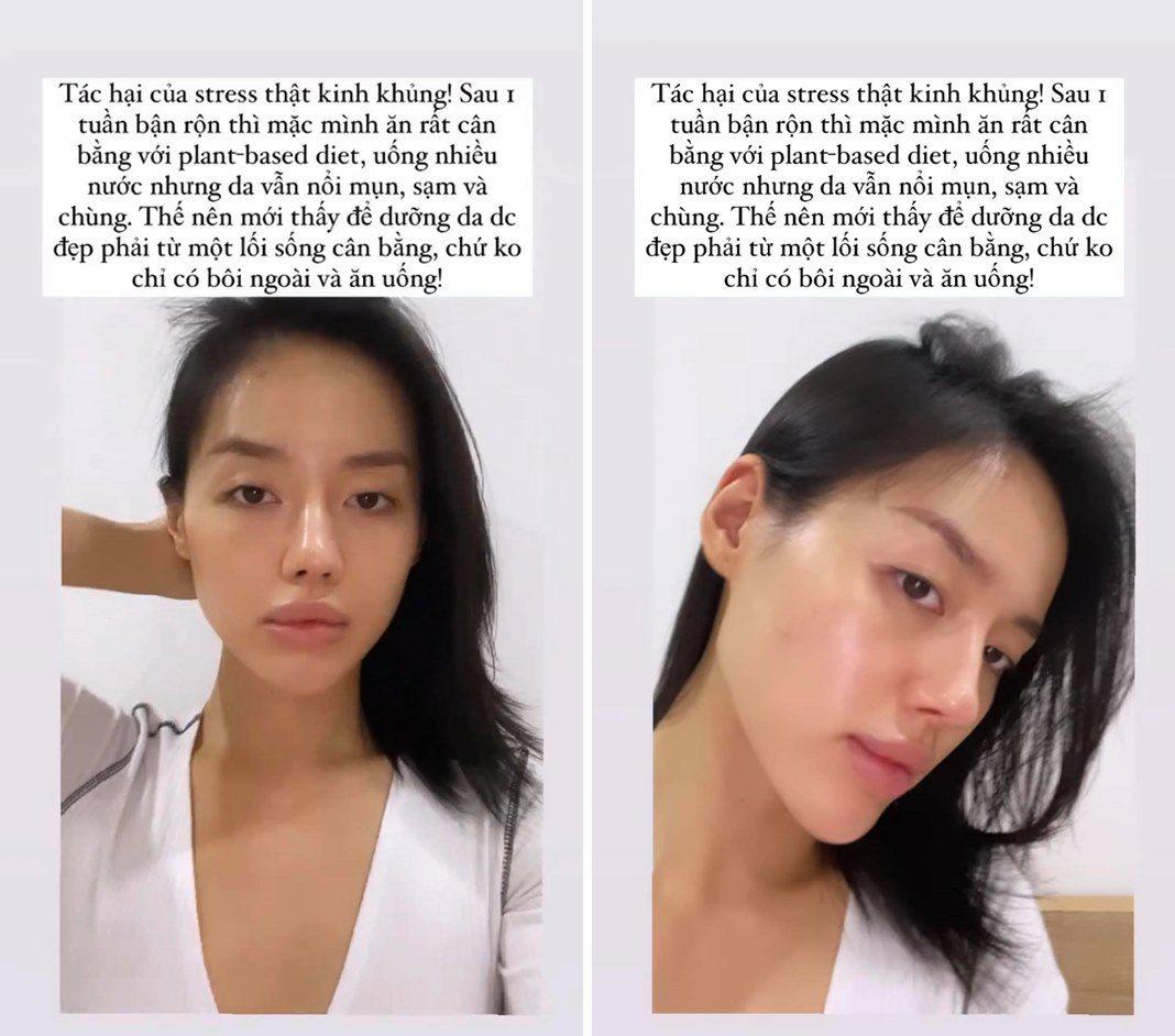 Khánh Linh cố gắng skincare, ăn sạch hết sức nhưng mặt vẫn bung mụn và lí do là? - 4