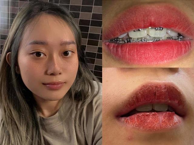 Hồi hộp xem review cấy hồng môi khử thâm, chuyên gia nói gì về phương pháp này?