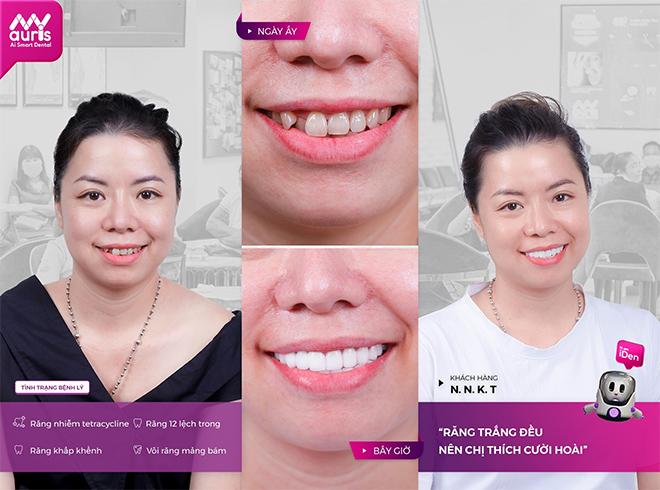 Nha khoa Thông Minh Auris chia sẻ kiến thức cần biết về dịch vụ bọc răng sứ - 2