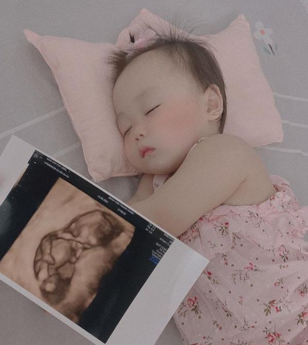 Mới đẻ mổ 10 tháng, cựu hotteen Hà Nội 19 tuổi tiếp tục amp;#34;dínhamp;#34; bầu, thai nhi đã 3 tháng - 4