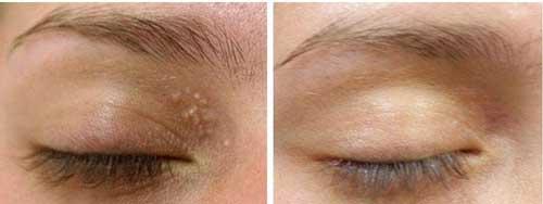 Đây là 3 cách đơn giản, rẻ tiền nhất để trị mụn thịt quanh mắt, mụn cỡ nào cũng lặn