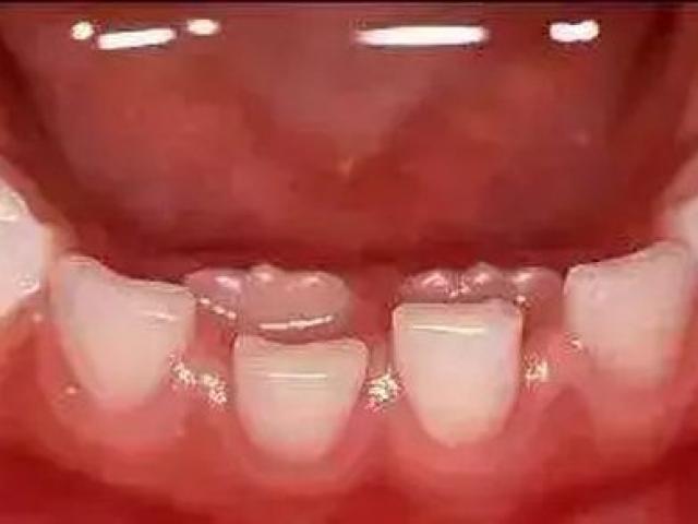 Cậu bé 7 tuổi bị hàm răng đôi, cảnh báo do thói quen chiều con khi ăn của cha mẹ