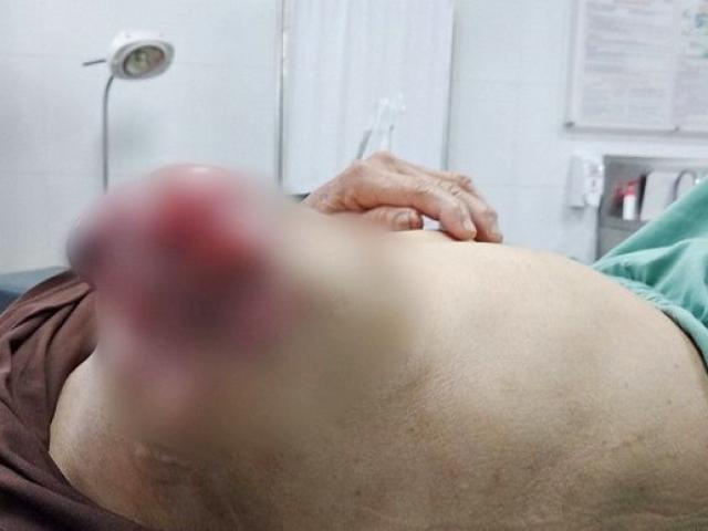 Đắp lá chữa ung thư vú, người phụ nữ phải nhập viện vì bị lở loét, chảy dịch