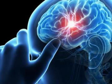 Tai biến mạch máu não là gì? Nguyên nhân và cách điều trị hiệu quả nhất