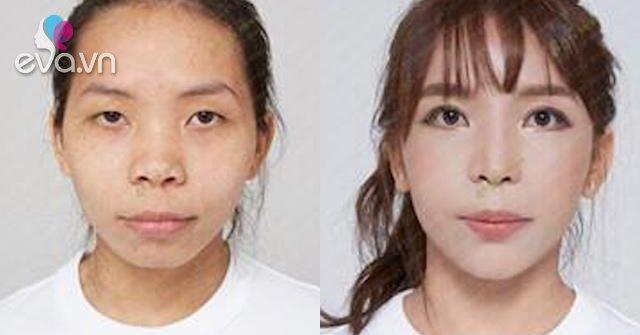"""Từng có biệt danh """"King kong"""", cô gái Ninh Bình """"lột xác"""" nhờ phẫu thuật thẩm mỹ"""