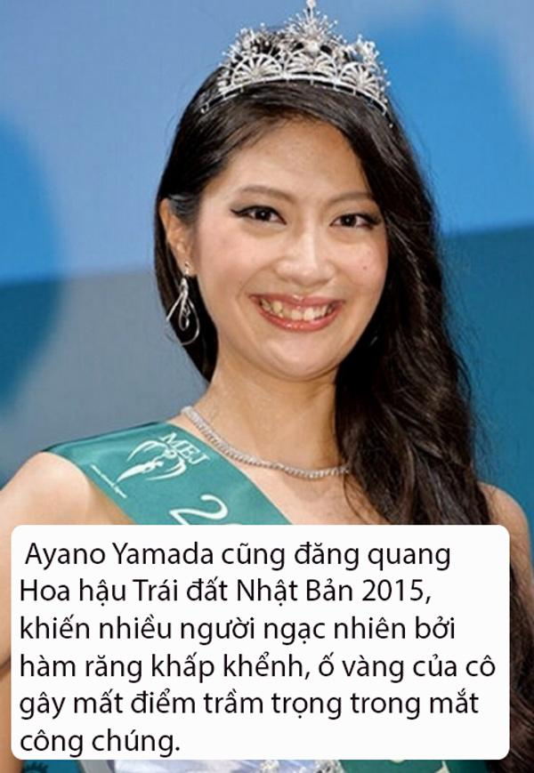 that bat ngo, le au ngan anh lot top hoa hau... bi che xau nhat the gioi - 9