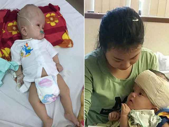 Con vừa chào đời đã gánh bệnh não úng thủy, mẹ Hà Tĩnh ôm con đi khắp nơi cầu cứu