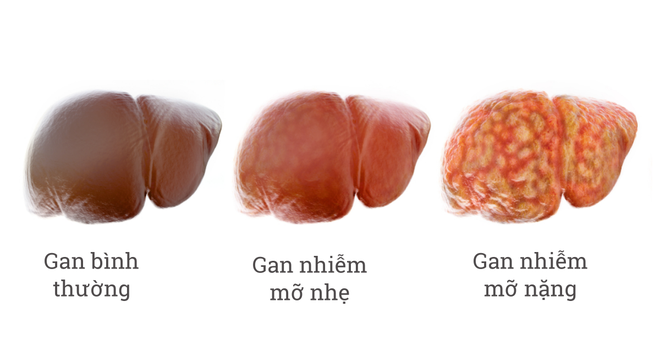 Người bị gan nhiễm mỡ nên ăn gì để tốt cho sức khỏe?