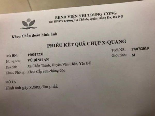 chua kip vui mung vi con chao doi, san phu choang vang nhan tin con bi gay xuong don - 2
