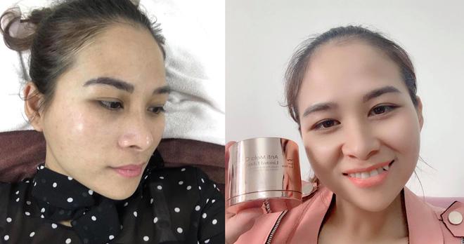 """8 ly do khien chi em """"san lung"""" kem nam cao cap anti mela cream cua from your skin - 5"""