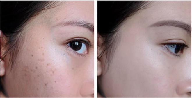 """8 ly do khien chi em """"san lung"""" kem nam cao cap anti mela cream cua from your skin - 6"""