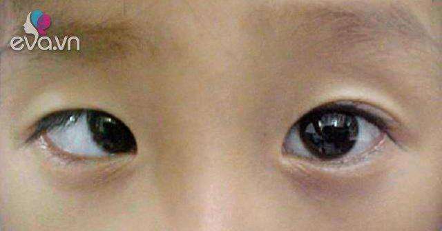 Nghịch điện thoại 10 tiếng mỗi ngày, cậu bé 9 tuổi đột nhiên bị lác mắt