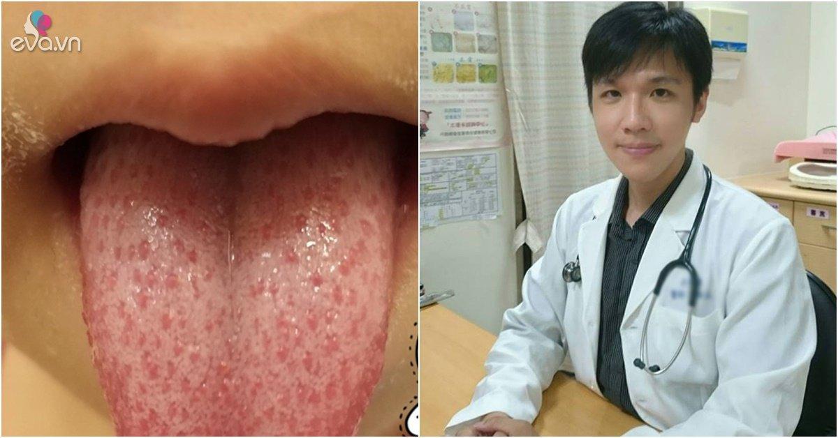 """Trẻ 5 tuổi bị sốt và có """"lưỡi dâu tây"""", bác sĩ khuyên tới viện gấp kẻo nguy tính mạng"""
