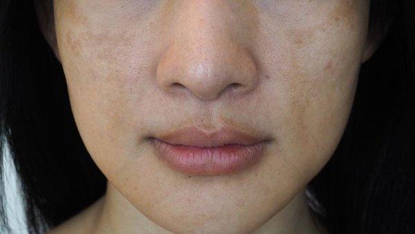 bo sung vitamin ngay neu thay nhan sac co nhung bieu hien xuong cap truoc khi qua muon - 4
